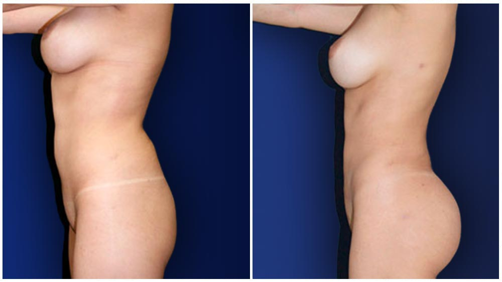 Charlotte Liposuction Specialty Clinic -  Fat Transfer to Buttocks Patient