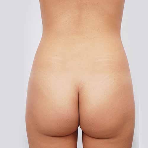 Brazilian Butt Lift Patient - Before Picture